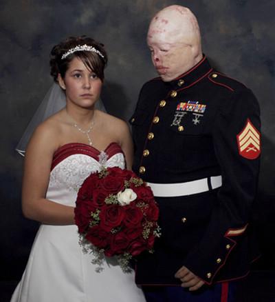 Tyler Ziegel, marine sfigurato dalla guerra