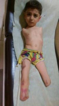 """Bambino siriano. Mahmoud, 6 anni, è nato senza braccia. Otto mesi fa un colpo di mortaio tirato dai """"ribelli""""  ha centrato l'appartamento della sua famiglia e lo ha colpito alle gambe. All'ospedale al Razi hanno dovuto amputargliele."""