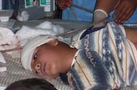 un bambino iracheno colpito dai cecchini USA