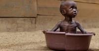 Ogni minuto cinque bambini muoiono di malnutrizione
