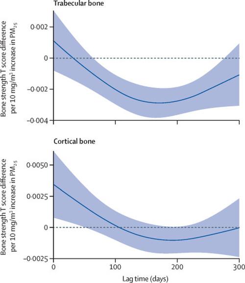 Modello di ritardo distribuito delle differenze del punteggio T dell'associazione inversa tra concentrazioni di PM2.5 (μg/m3) e resistenza ossea