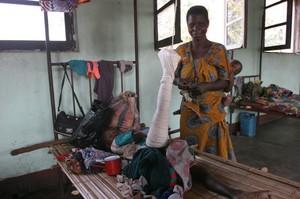 Ospedale di Kimbau, trazione applicata a un bambino nel raparto di chirurgia.