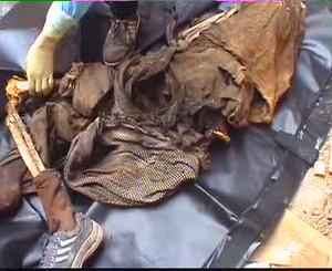 Agghiaccianti effetti della guerra chimica a Falluja, sul corpo di un essere umano, forse di un ragazzo