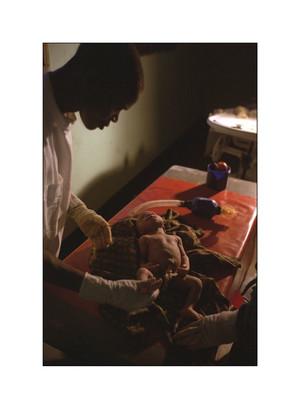 Tentativo di rianimazione neonatale